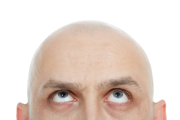 Men's baldnes